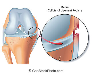 medial collateral ligament rupture - medical Illustration of...