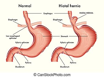 Medical illustration of stomach with hiatal hernia with annotation.