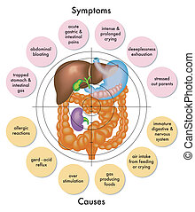 medical illustration of symptoms and causes of colic