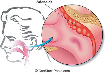 adenoids - medical illustration of the adenoids