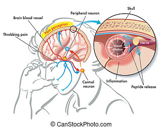 migraine - medical illustration of the causes of migraine