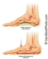 flat foot - medical illustration of the consequences of flat...