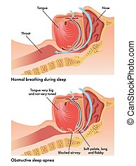 obstructive sleep apnea - medical illustration of the ...