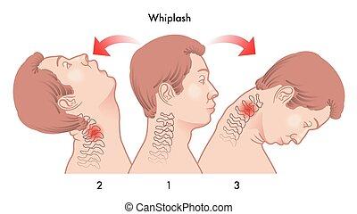 whiplash injury - medical illustration of the dynamics of...