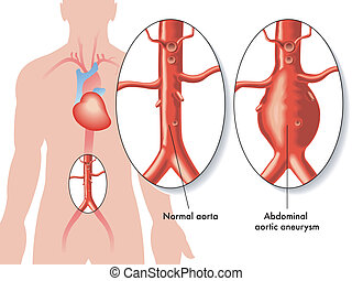 Abdominal aortic aneurysm - medical illustration of the ...
