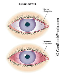 medical illustration of the effects of conjunctivitis