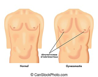 gynecomastia - medical illustration of the effects of...