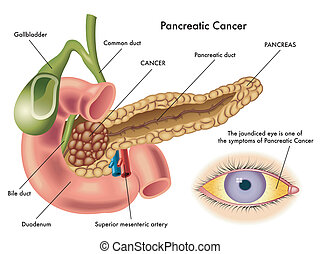 pancreatic cancer - medical illustration of the effects of...