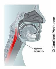 pharyngitis - medical illustration of the effects of ...