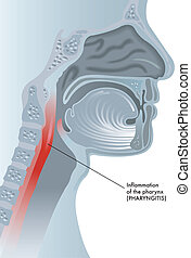 medical illustration of the effects of pharyngitis