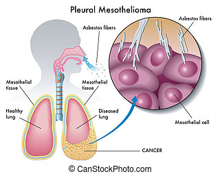pleural mesothelioma - medical Illustration of the effects...