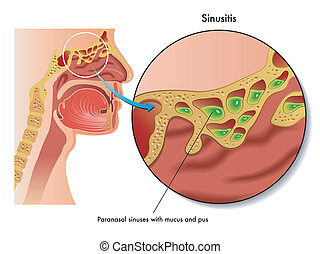 sinusitis - medical illustration of the effects of sinusitis