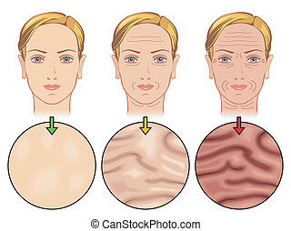 skin aging - medical illustration of the effects of skin...