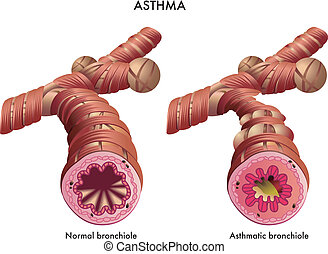 Asthma - medical illustration of the effects of the Asthma
