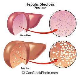 Hepatic steatosis - medical illustration of the effects of...