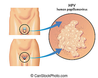 HPV (human papillomavirus) - medical illustration of the...
