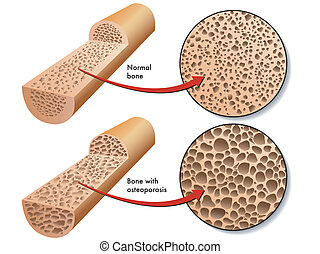 osteoporosis - medical illustration of the effects of the...