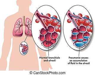 pneumonia - medical illustration of the effects of the ...