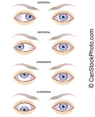strabismus - medical illustration of the effects of the ...