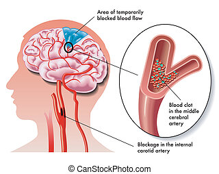 TIA (transient ischemic attack) - medical illustration of ...