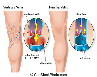 varicose veins - medical illustration of the effects of the...