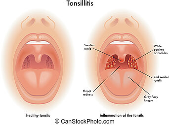 tonsillitis - medical illustration of the effects of ...