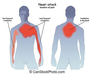 heart attack pain location - Medical illustration of the...