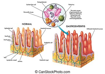 gastroenteritis - medical illustration of the main causes of...