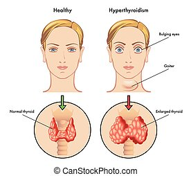 hyperthyroidism - medical illustration of the main symptoms ...