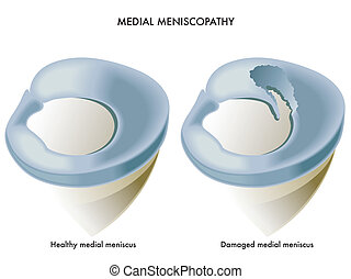 medial meniscopathy - medical illustration of the medial...