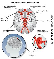 medical illustration of the most common sites of cerebral aneurysm
