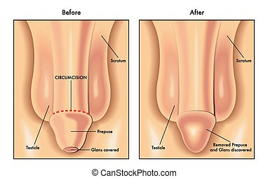 circumcision - medical illustration of the penis before and...