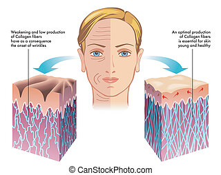 medical illustration of the role of collagen in the process of skin regeneration