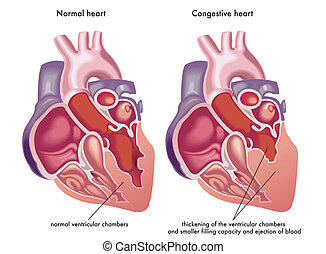 medical illustration of the symptoms and consequences of congestive heart
