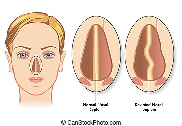 deviated nasal septum - medical illustration of the symptoms...