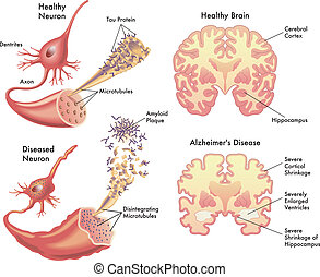 Alzheimer's disease - medical illustration of the symptoms ...