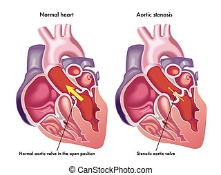 aortic stenosis - medical illustration of the symptoms of...