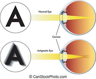 astigmatism - medical illustration of the symptoms of ...