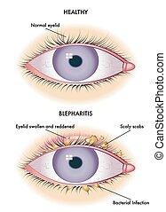medical illustration of the symptoms of blepharitis
