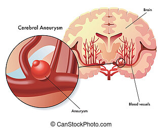 cerebral aneurysm - medical illustration of the symptoms of...