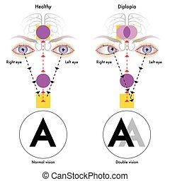 diplopia - medical illustration of the symptoms of diplopia