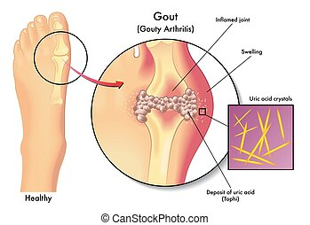 gout - medical illustration of the symptoms of gout