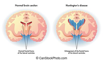 Huntington's disease - medical illustration of the symptoms...