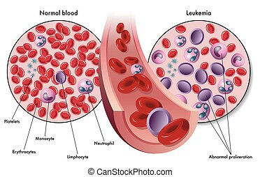 leukemia - medical illustration of the symptoms of leukemia ...