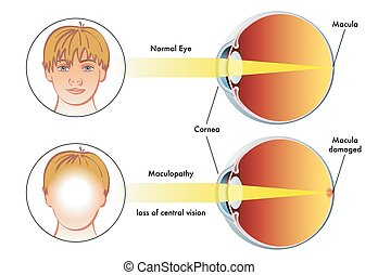 maculopathy - medical illustration of the symptoms of...