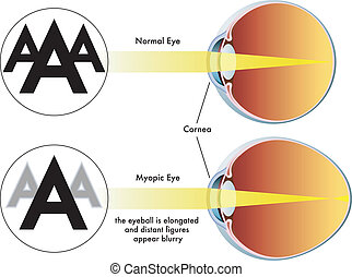 myopia - medical illustration of the symptoms of myopia
