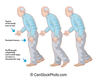 medical illustration of the symptoms of Parkinson's disease