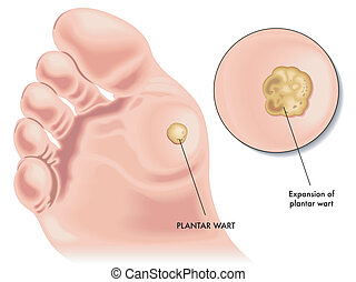 plantar wart - medical illustration of the symptoms of...