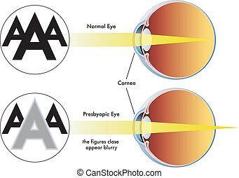 presbyopia - medical illustration of the symptoms of...