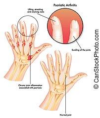 psoriatic arthritis - medical illustration of the symptoms ...